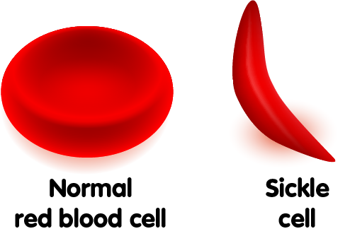 Image result for Sickle Cell